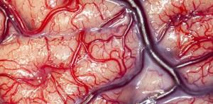 brain_2
